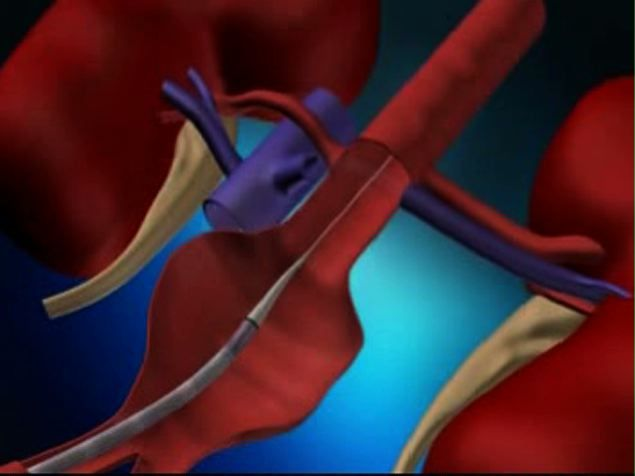 What is endovascular surgery?